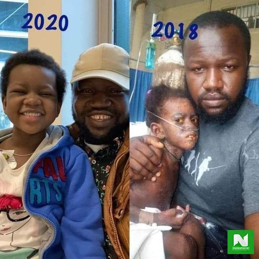 Incredible Transformation Of A 5-year-old Girl Who Beat Cancer Of The Blood (PHOTO)