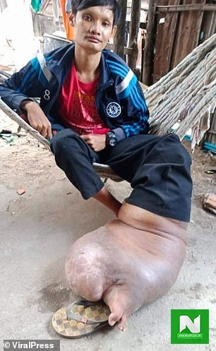 Infected mosquito bite leaves man with a leg five times its normal size and the condition is untreatable (photos)